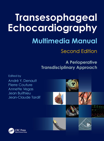 Transesophageal Echocardiography Multimedia Manual A Perioperative Transdisciplinary Approach book cover