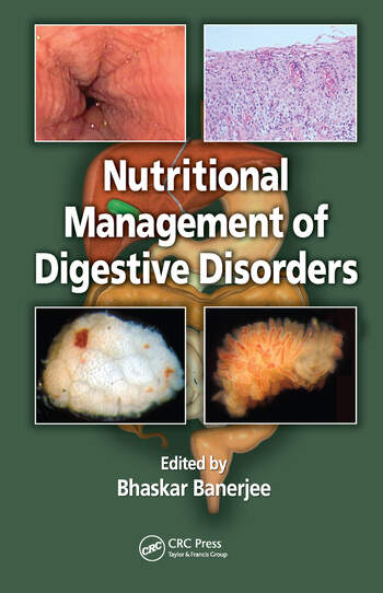 Nutritional Management of Digestive Disorders book cover