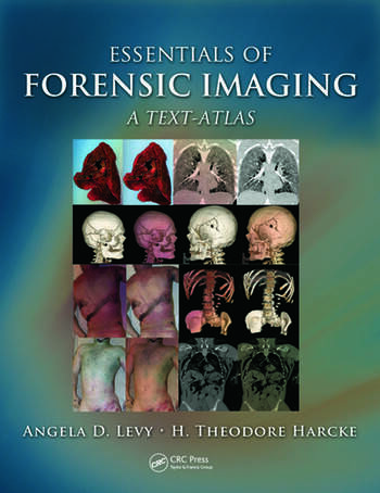 Essentials of Forensic Imaging A Text-Atlas book cover