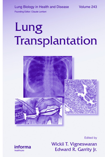 Lung Transplantation book cover