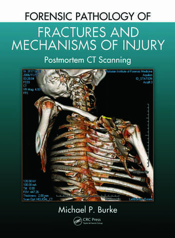 Forensic Pathology of Fractures and Mechanisms of Injury Postmortem CT Scanning book cover