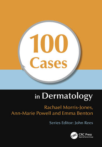 100 Cases in Dermatology book cover