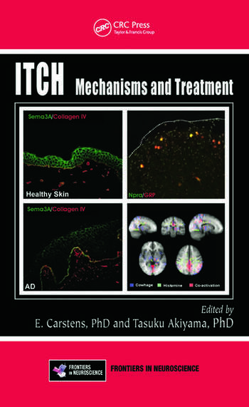 Itch Mechanisms and Treatment book cover