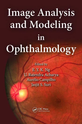 Image Analysis and Modeling in Ophthalmology book cover