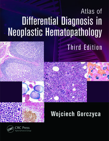 Atlas of Differential Diagnosis in Neoplastic Hematopathology book cover