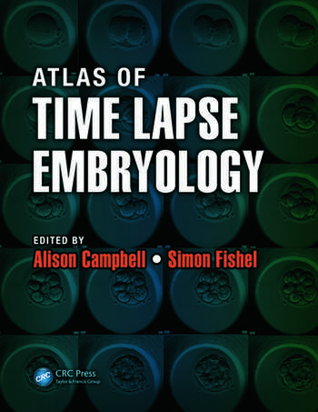 Atlas of Time Lapse Embryology book cover