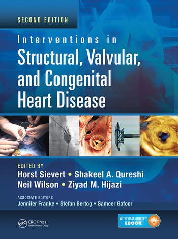 Interventions in Structural, Valvular and Congenital Heart Disease book cover