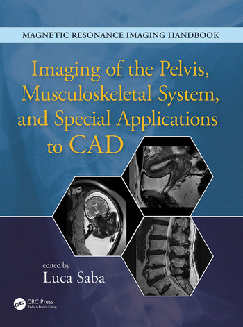 Imaging of the Pelvis, Musculoskeletal System, and Special Applications to CAD book cover