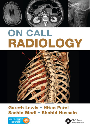 On Call Radiology book cover