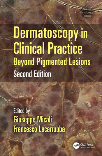 Dermatoscopy in Clinical Practice Beyond Pigmented Lesions book cover