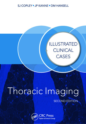 Thoracic Imaging Illustrated Clinical Cases, Second Edition book cover