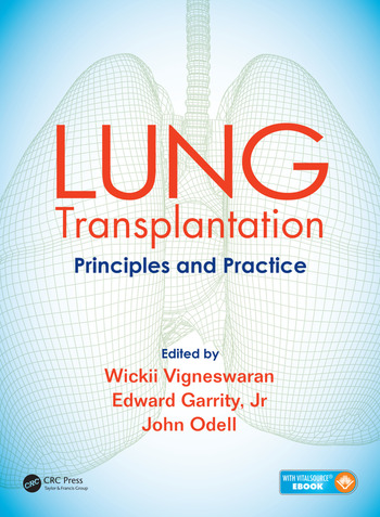 Lung Transplantation Principles and Practice book cover