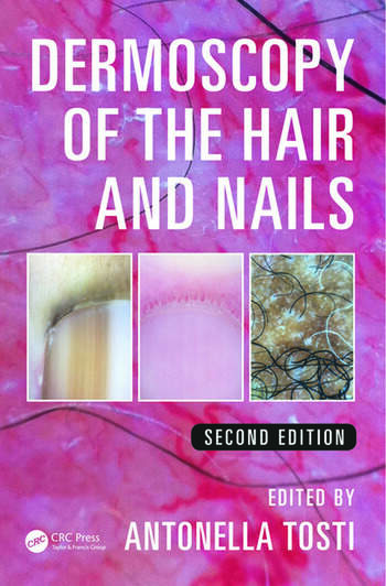 Dermoscopy of the Hair and Nails book cover