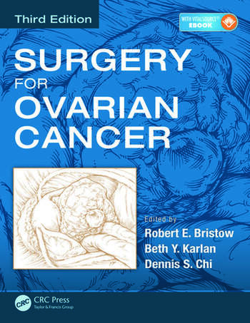 Surgery for Ovarian Cancer book cover
