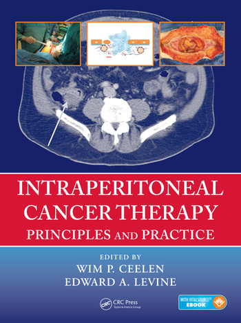 Intraperitoneal Cancer Therapy Principles and Practice book cover