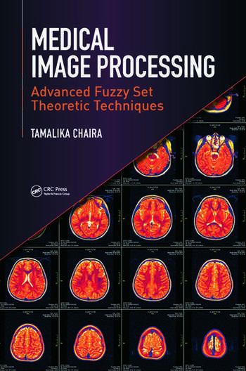 Medical Image Processing Advanced Fuzzy Set Theoretic Techniques book cover