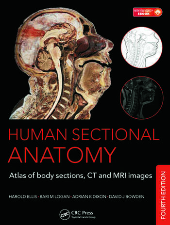 Human Sectional Anatomy Atlas of Body Sections, CT and MRI Images, Fourth Edition book cover