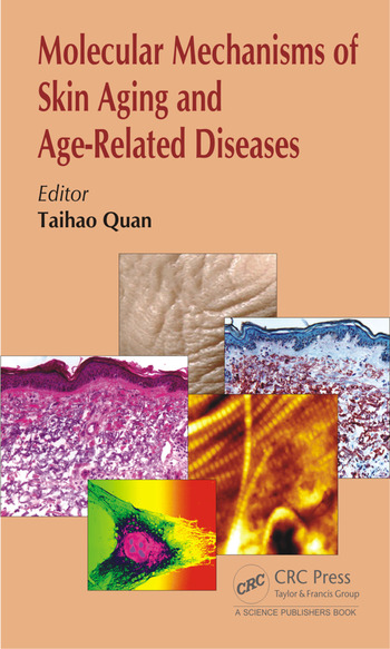 Molecular Mechanisms of Skin Aging and Age-Related Diseases book cover