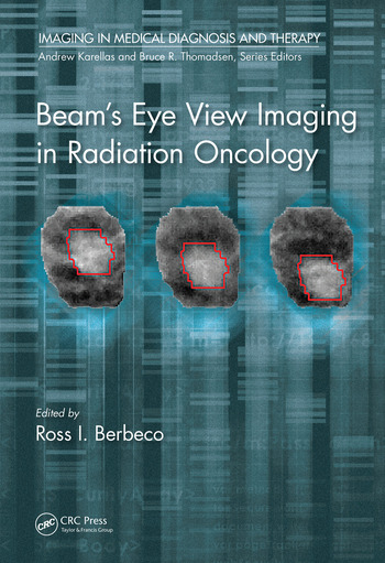 Beam's Eye View Imaging in Radiation Oncology book cover
