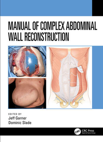 Manual of Complex Abdominal Wall Reconstruction book cover