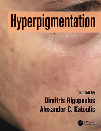 Hyperpigmentation book cover