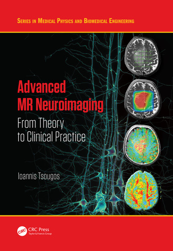 Advanced MR Neuroimaging From Theory to Clinical Practice book cover