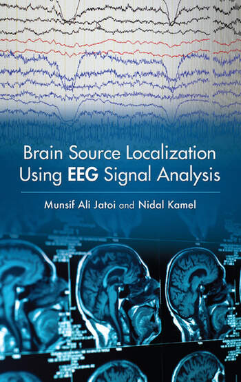 Brain Source Localization Using EEG Signal Analysis book cover