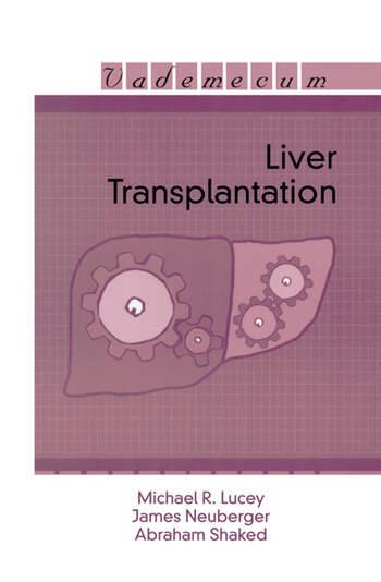 Liver Transplantation book cover