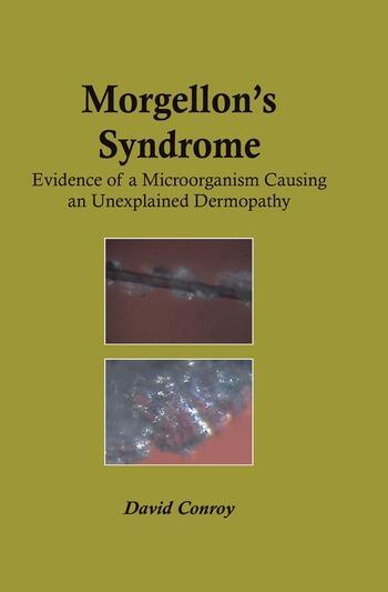 Morgellon's Syndrome book cover