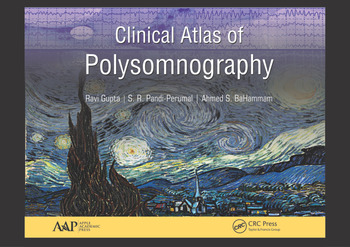 polysomnography guidelines 2016