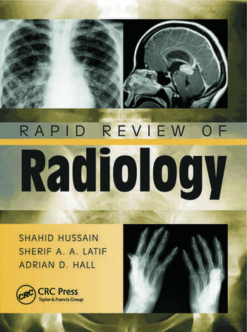 Rapid Review of Radiology book cover