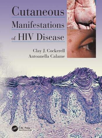Cutaneous Manifestations of HIV Disease book cover