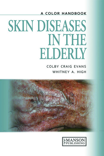 Skin Diseases in the Elderly A Color Handbook book cover