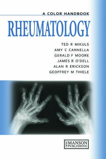 Rheumatology A Color Handbook book cover
