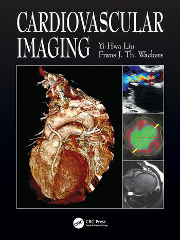 Cardiovascular Imaging book cover