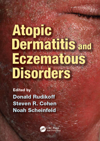Atopic Dermatitis and Eczematous Disorders book cover