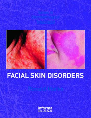 Facial Skin Disorders book cover
