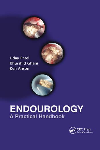 Endourology A Practical Handbook book cover