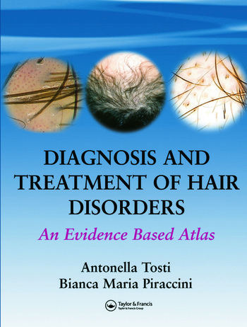 Diagnosis and Treatment of Hair Disorders An Evidence-Based Atlas book cover