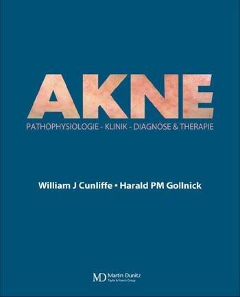 Acne Diagnose und Therapie book cover