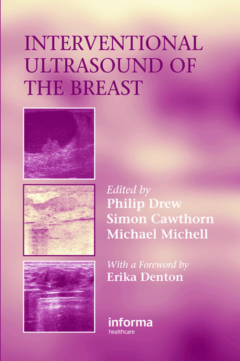 Interventional Ultrasound of the Breast book cover