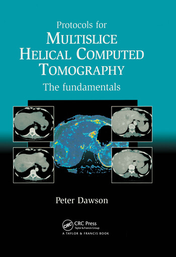 Protocols for Multislice Helical Computed Tomography The Fundamentals book cover