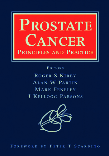 Prostate Cancer Principles and Practice book cover