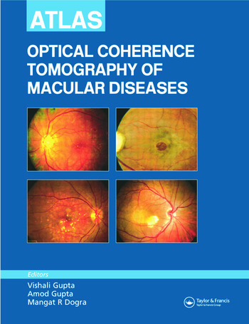 Atlas of Optical Coherence Tomography of Macular Diseases book cover
