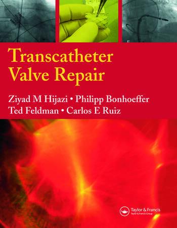 Transcatheter Valve Repair book cover