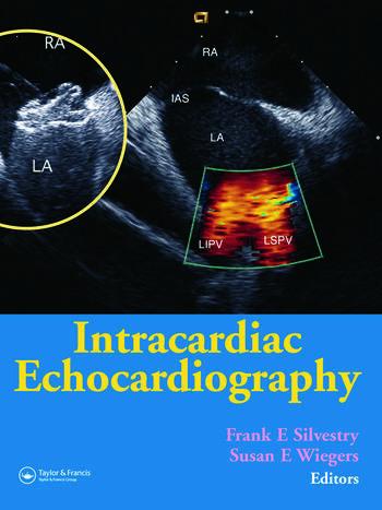 Intracardiac Echocardiography book cover