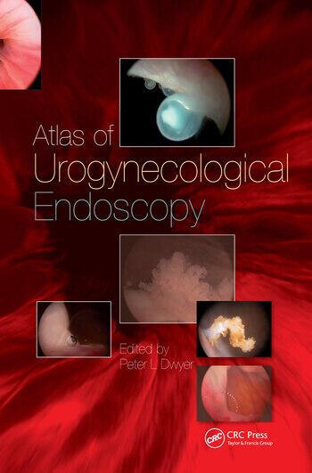 Handbook of Urologic Cryoablation book cover