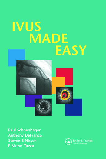 IVUS Made Easy book cover