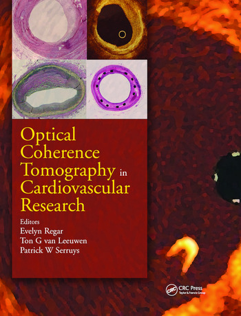 Optical Coherence Tomography in Cardiovascular Research book cover
