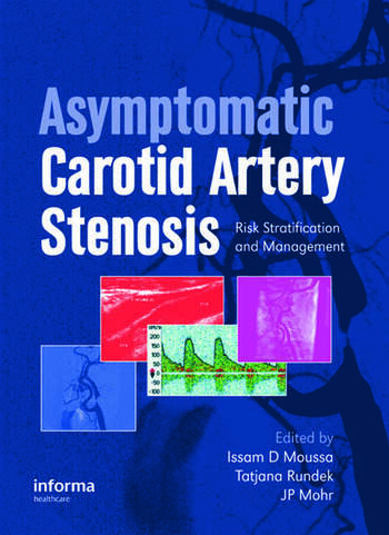 Asymptomatic Carotid Artery Stenosis A Primer on Risk Stratification and Management book cover